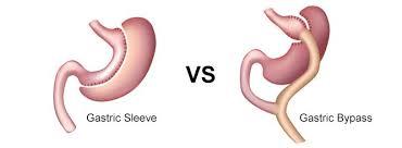 sleeve ou bypass